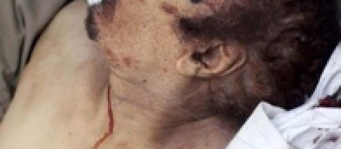 Khaddafi foi capturado vivo e terá morrido de ferimentos na batalha de Sirte